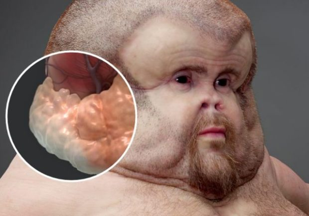 В Австралии ученые представили неуязвимого к ДТП «человека-монстра»